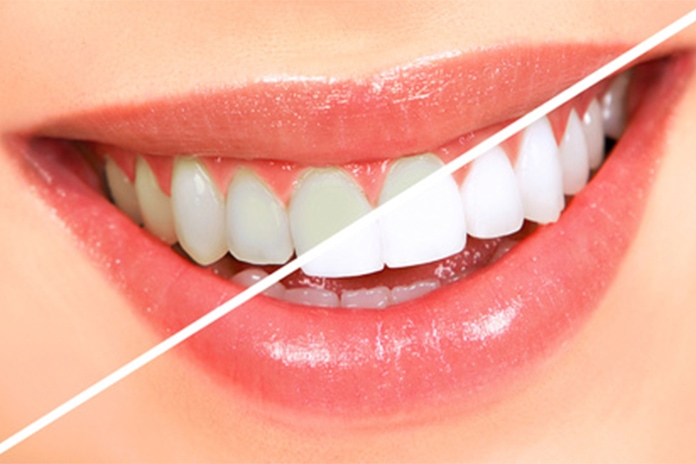 Healthier teeth using baking soda