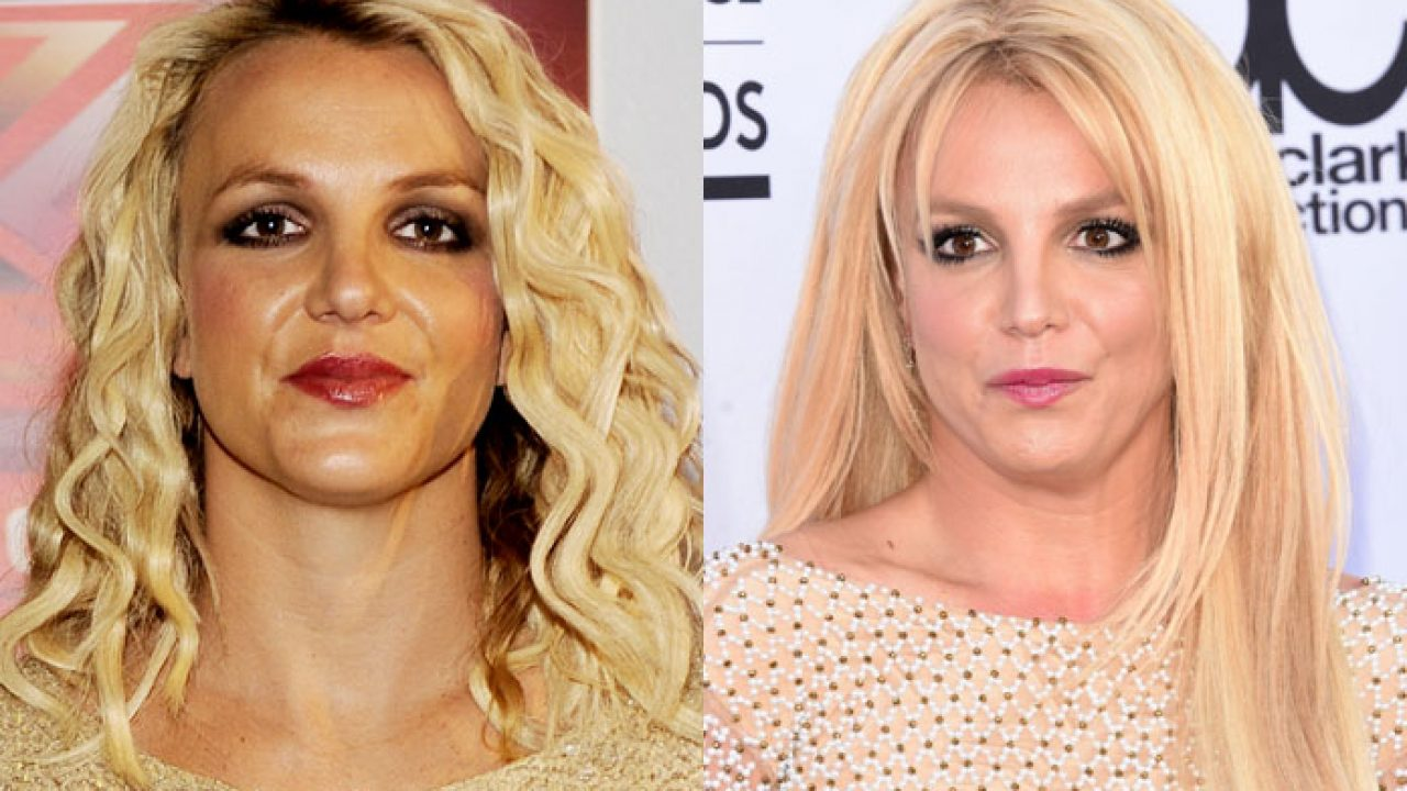 14 Secret Celebrity Plastic Surgeries Livinghours