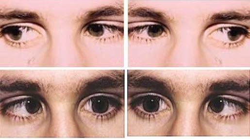 Side to side Eye movement exercise to improve your eyesight.